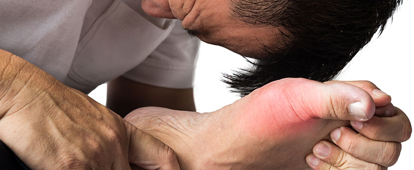 What to Know About Gout
